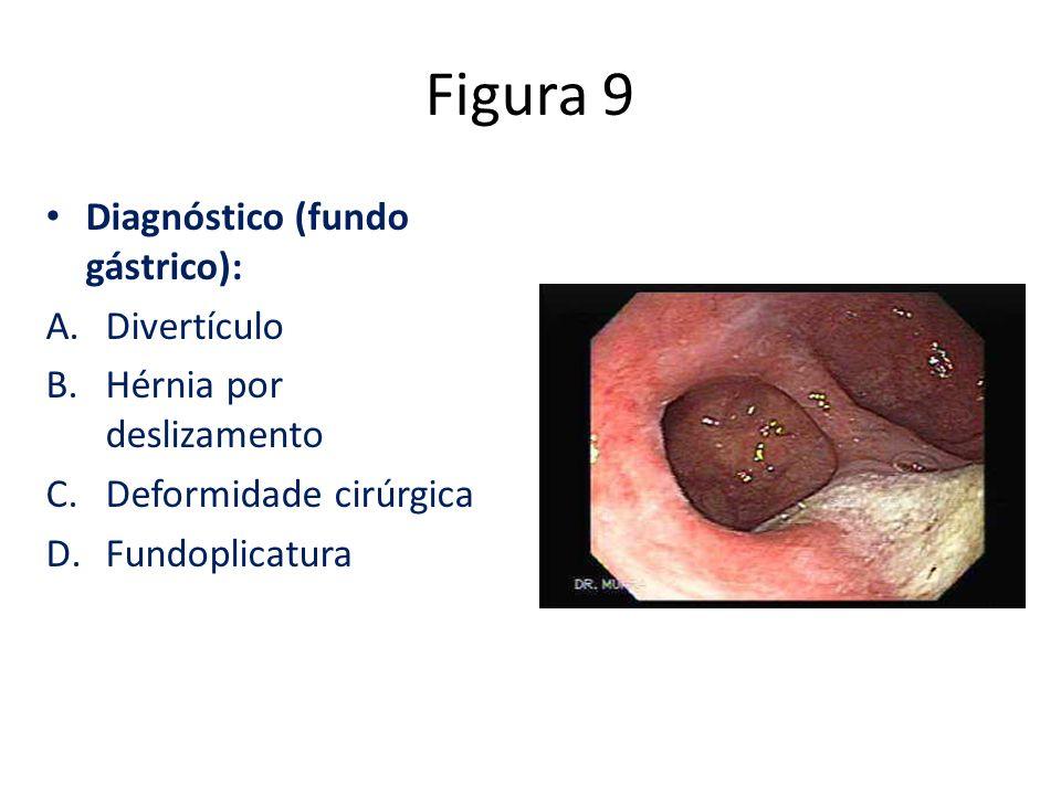Figura 9 Diagnóstico (fundo gástrico): A.Divertículo B.Hérnia por deslizamento C.Deformidade cirúrgica D.Fundoplicatura
