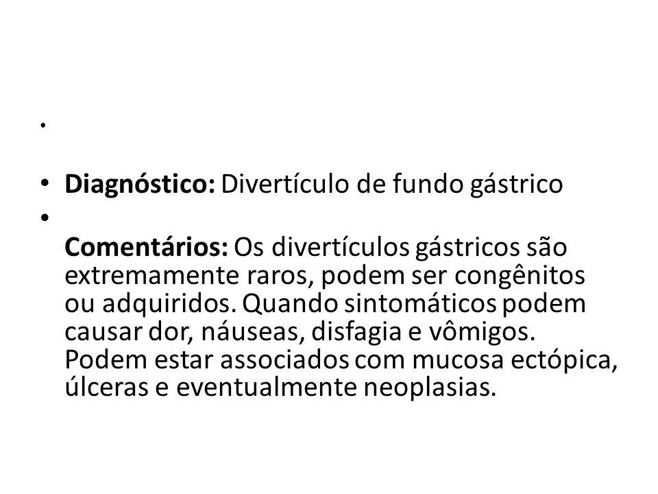 Diagnóstico: Divertículo de fundo gástrico Comentários: Os divertículos gástricos são extremamente raros, podem ser congênitos ou adquiridos. Quando s