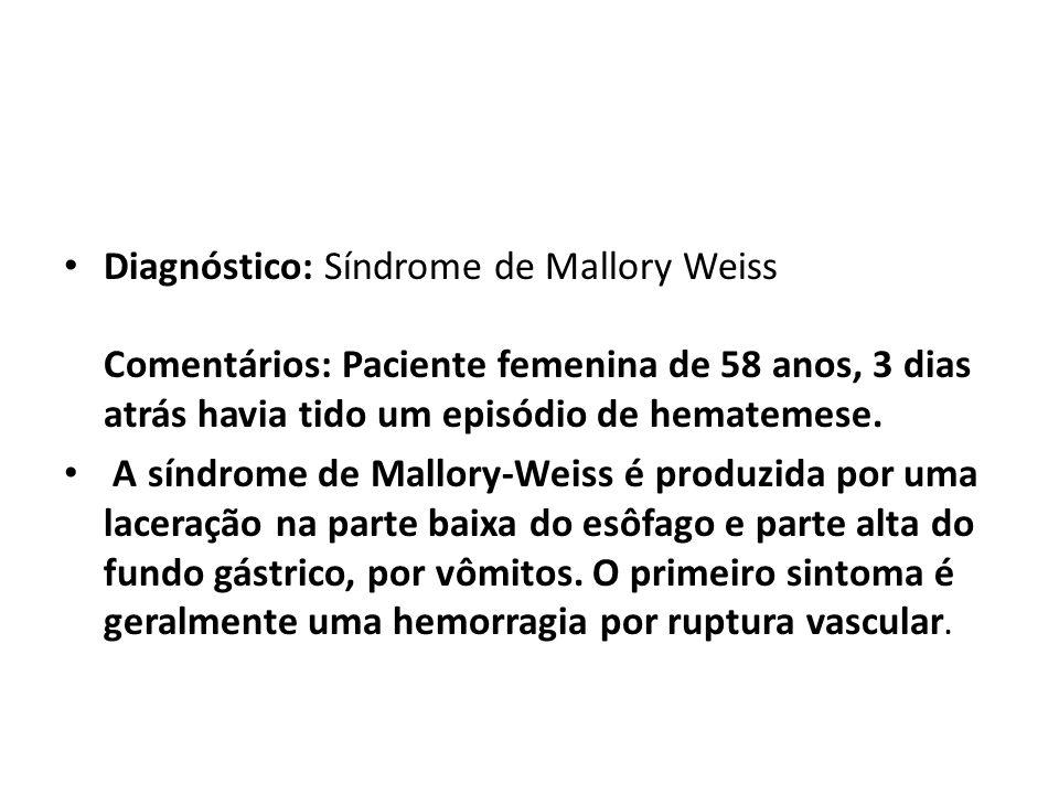 Diagnóstico: Síndrome de Mallory Weiss Comentários: Paciente femenina de 58 anos, 3 dias atrás havia tido um episódio de hematemese. A síndrome de Mal