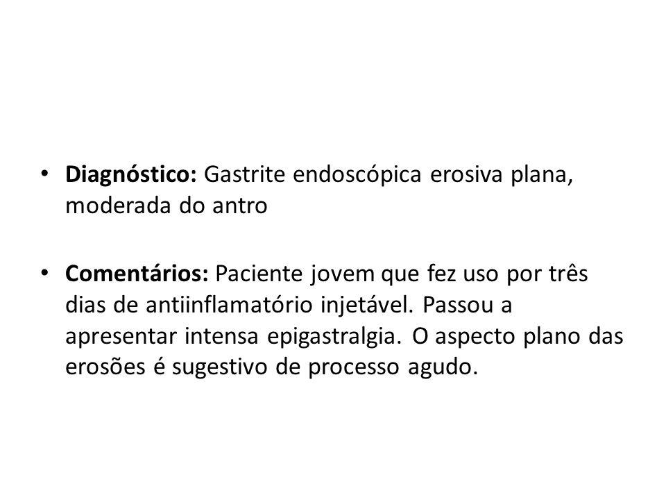 Diagnóstico: Gastrite endoscópica erosiva plana, moderada do antro Comentários: Paciente jovem que fez uso por três dias de antiinflamatório injetável
