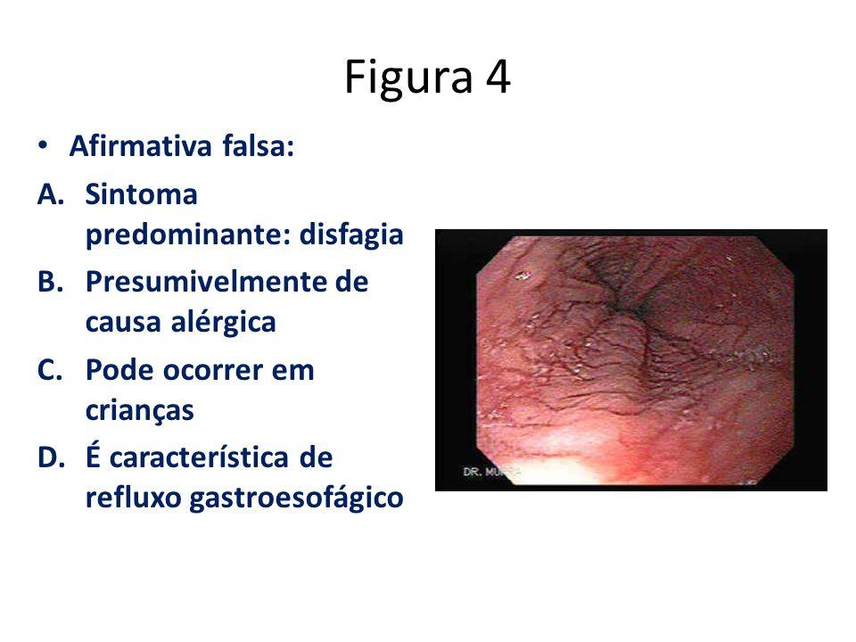 Figura 4 Afirmativa falsa: A.Sintoma predominante: disfagia B.Presumivelmente de causa alérgica C.Pode ocorrer em crianças D.É característica de reflu
