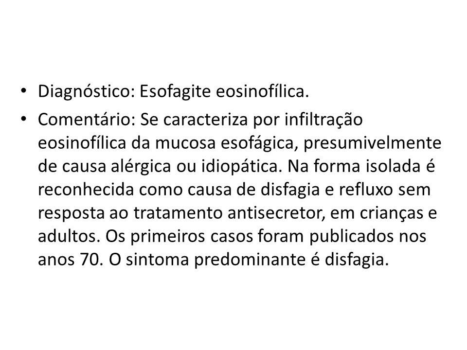 Diagnóstico: Esofagite eosinofílica. Comentário: Se caracteriza por infiltração eosinofílica da mucosa esofágica, presumivelmente de causa alérgica ou