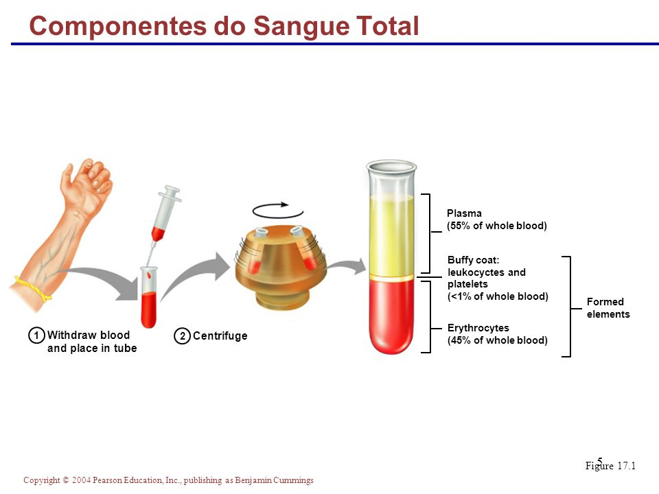 Copyright © 2004 Pearson Education, Inc., publishing as Benjamin Cummings 5 Componentes do Sangue Total Figure 17.1 Withdraw blood and place in tube 1 2 Centrifuge Plasma (55% of whole blood) Formed elements Buffy coat: leukocyctes and platelets (<1% of whole blood) Erythrocytes (45% of whole blood)
