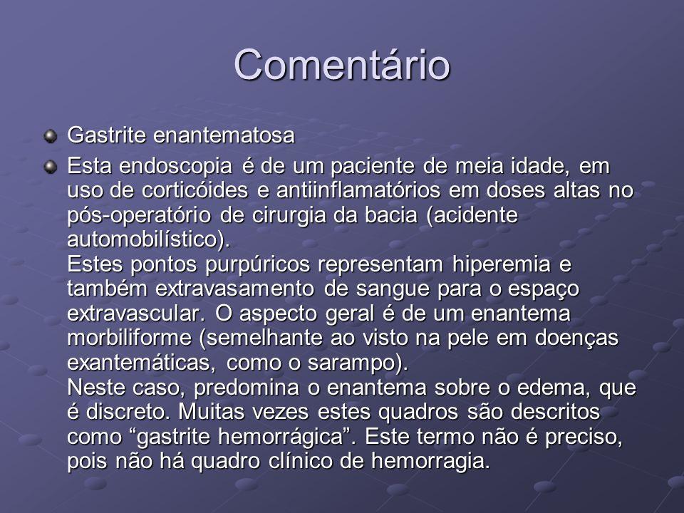 Comentário Gastrite enantematosa Esta endoscopia é de um paciente de meia idade, em uso de corticóides e antiinflamatórios em doses altas no pós-opera