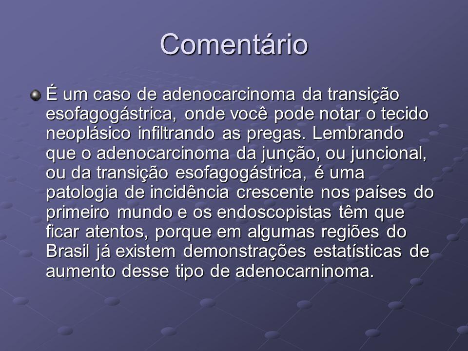 Comentário É um caso de adenocarcinoma da transição esofagogástrica, onde você pode notar o tecido neoplásico infiltrando as pregas. Lembrando que o a
