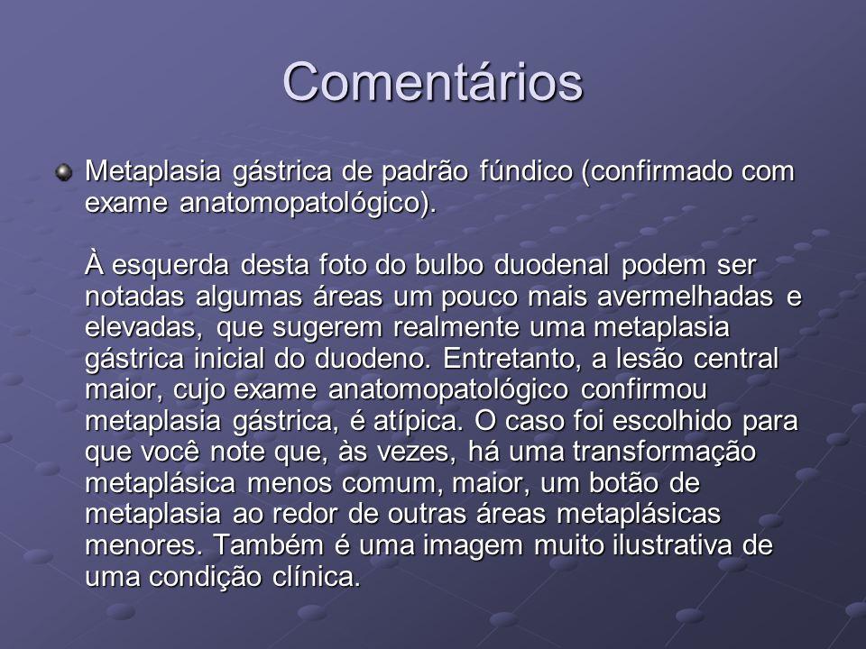 Comentários Metaplasia gástrica de padrão fúndico (confirmado com exame anatomopatológico). À esquerda desta foto do bulbo duodenal podem ser notadas