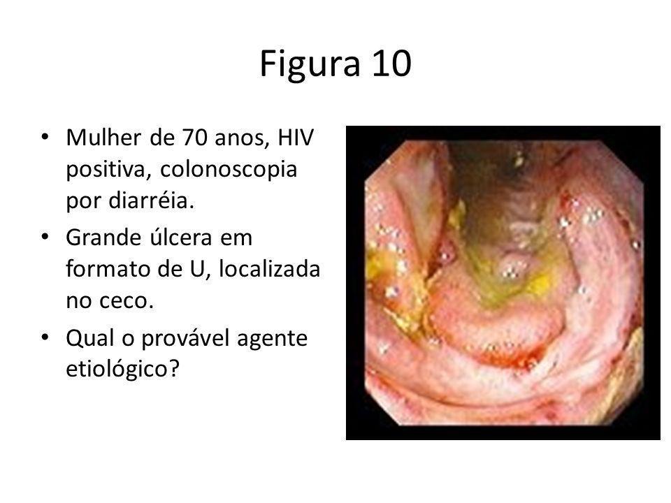 Figura 10 Mulher de 70 anos, HIV positiva, colonoscopia por diarréia. Grande úlcera em formato de U, localizada no ceco. Qual o provável agente etioló
