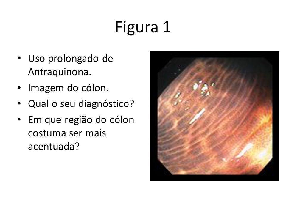 Figura 1 Uso prolongado de Antraquinona. Imagem do cólon. Qual o seu diagnóstico? Em que região do cólon costuma ser mais acentuada?
