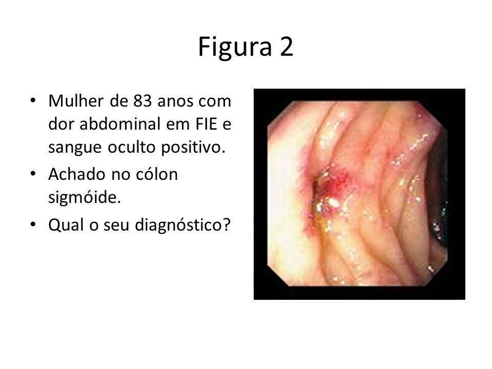 Figura 2 Mulher de 83 anos com dor abdominal em FIE e sangue oculto positivo. Achado no cólon sigmóide. Qual o seu diagnóstico?