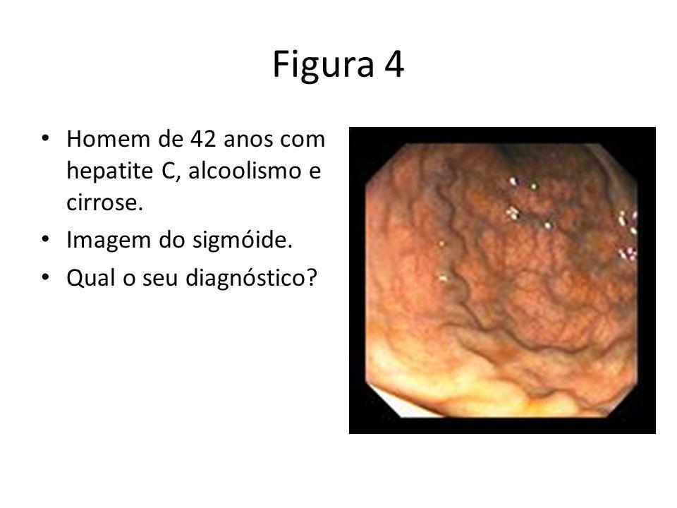 Figura 4 Homem de 42 anos com hepatite C, alcoolismo e cirrose. Imagem do sigmóide. Qual o seu diagnóstico?