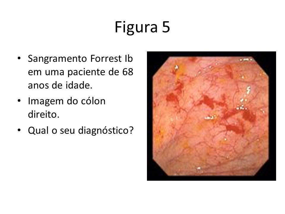 Figura 5 Sangramento Forrest Ib em uma paciente de 68 anos de idade. Imagem do cólon direito. Qual o seu diagnóstico?
