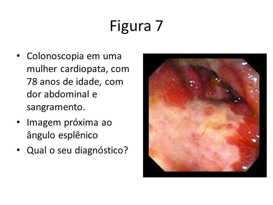 Figura 7 Colonoscopia em uma mulher cardiopata, com 78 anos de idade, com dor abdominal e sangramento. Imagem próxima ao ângulo esplênico Qual o seu d