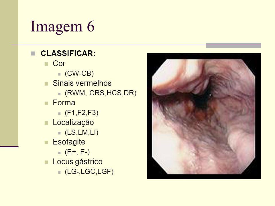 Imagem 6 CLASSIFICAR: Cor (CW-CB) Sinais vermelhos (RWM, CRS,HCS,DR) Forma (F1,F2,F3) Localização (LS,LM,LI) Esofagite (E+, E-) Locus gástrico (LG-,LG