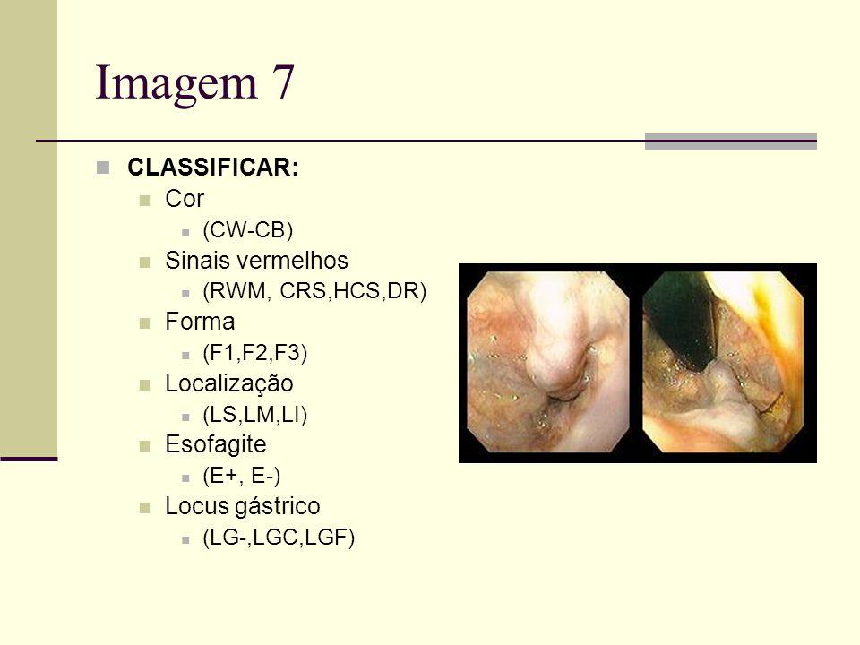 Imagem 7 CLASSIFICAR: Cor (CW-CB) Sinais vermelhos (RWM, CRS,HCS,DR) Forma (F1,F2,F3) Localização (LS,LM,LI) Esofagite (E+, E-) Locus gástrico (LG-,LG