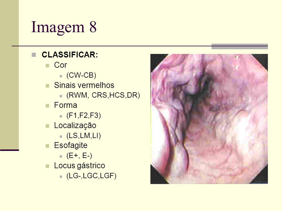 Imagem 8 CLASSIFICAR: Cor (CW-CB) Sinais vermelhos (RWM, CRS,HCS,DR) Forma (F1,F2,F3) Localização (LS,LM,LI) Esofagite (E+, E-) Locus gástrico (LG-,LG