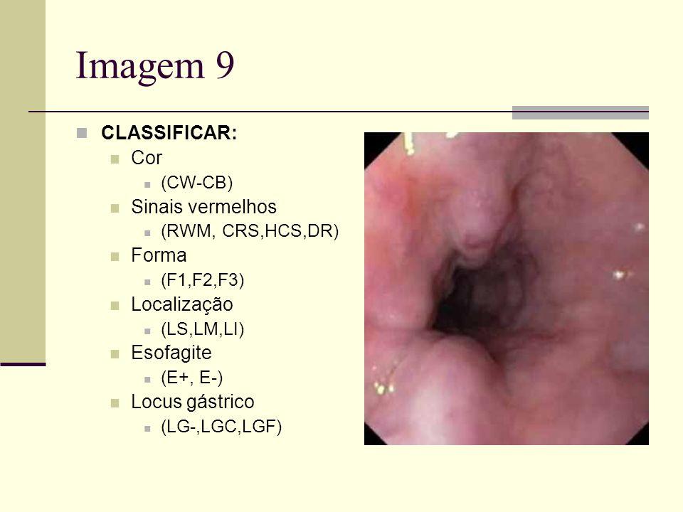 Imagem 9 CLASSIFICAR: Cor (CW-CB) Sinais vermelhos (RWM, CRS,HCS,DR) Forma (F1,F2,F3) Localização (LS,LM,LI) Esofagite (E+, E-) Locus gástrico (LG-,LG