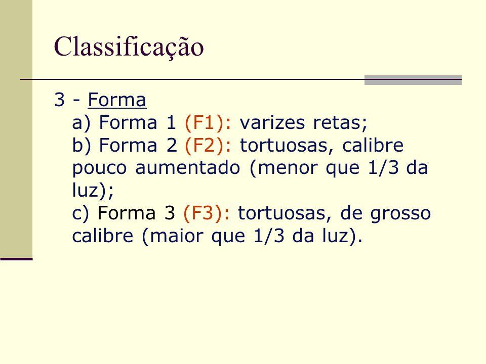 Classificação 3 - Forma a) Forma 1 (F1): varizes retas; b) Forma 2 (F2): tortuosas, calibre pouco aumentado (menor que 1/3 da luz); c) Forma 3 (F3): t