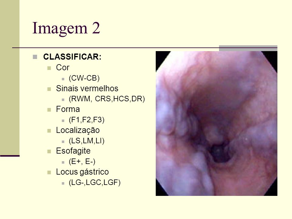 Imagem 2 CLASSIFICAR: Cor (CW-CB) Sinais vermelhos (RWM, CRS,HCS,DR) Forma (F1,F2,F3) Localização (LS,LM,LI) Esofagite (E+, E-) Locus gástrico (LG-,LG