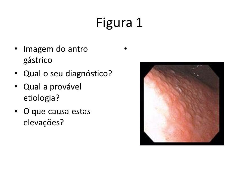 Figura 1 Imagem do antro gástrico Qual o seu diagnóstico? Qual a provável etiologia? O que causa estas elevações?