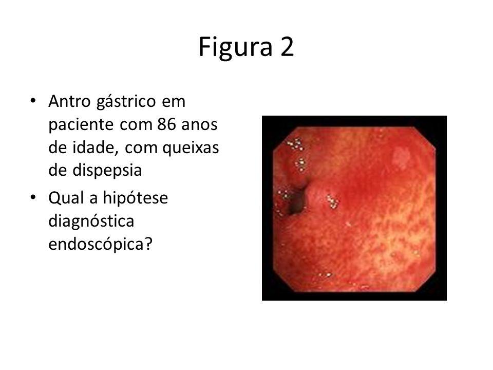Figura 2 Antro gástrico em paciente com 86 anos de idade, com queixas de dispepsia Qual a hipótese diagnóstica endoscópica?