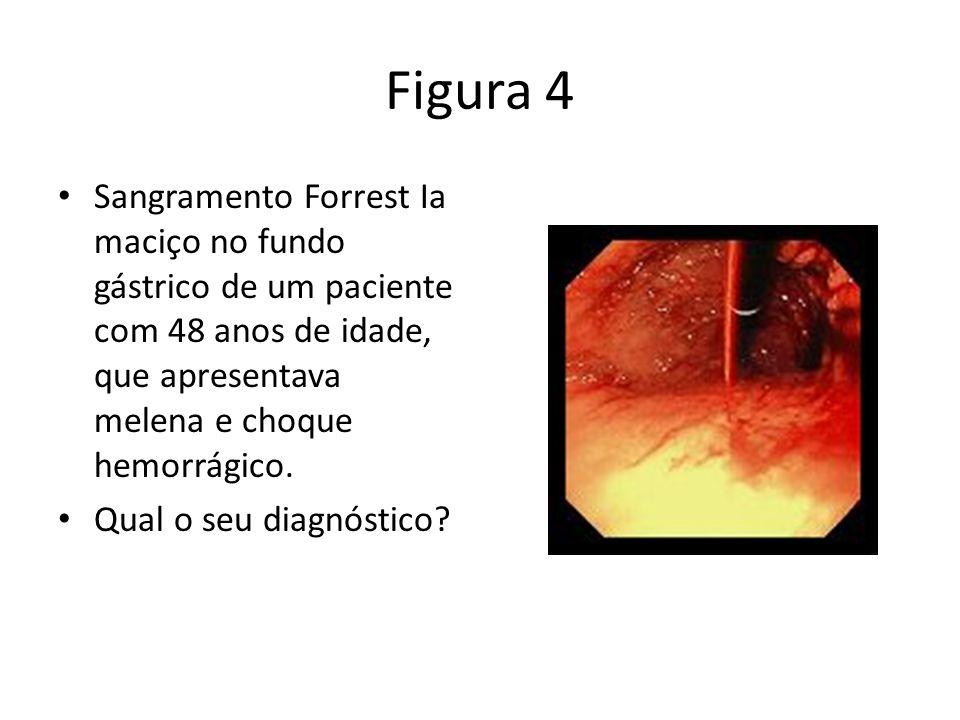 Figura 4 Sangramento Forrest Ia maciço no fundo gástrico de um paciente com 48 anos de idade, que apresentava melena e choque hemorrágico. Qual o seu