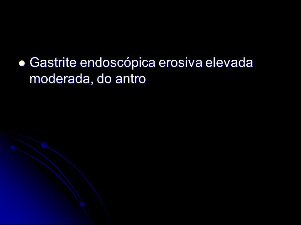 Gastrite endoscópica erosiva elevada moderada, do antro Gastrite endoscópica erosiva elevada moderada, do antro