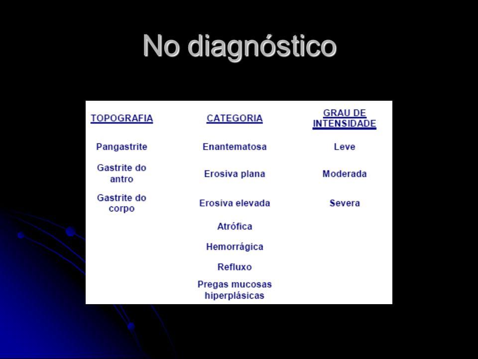 Gastrite endoscópica exsudativa enantematosa moderada, do antro Gastrite endoscópica exsudativa enantematosa moderada, do antro