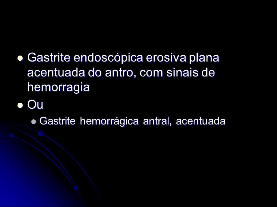 Gastrite endoscópica erosiva plana acentuada do antro, com sinais de hemorragia Gastrite endoscópica erosiva plana acentuada do antro, com sinais de h