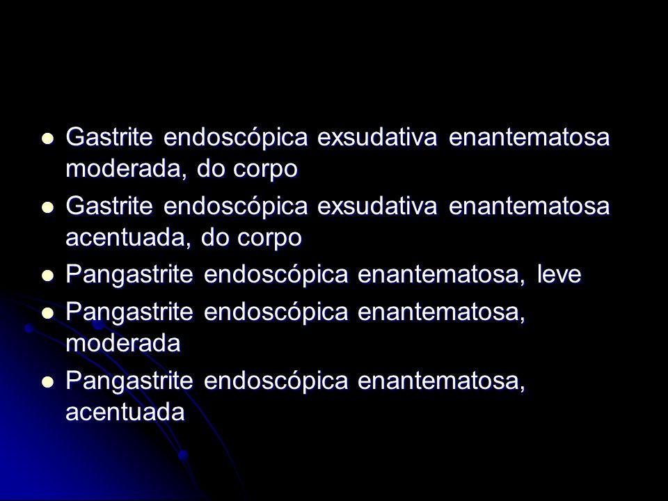 Gastrite endoscópica exsudativa enantematosa moderada, do corpo Gastrite endoscópica exsudativa enantematosa moderada, do corpo Gastrite endoscópica e