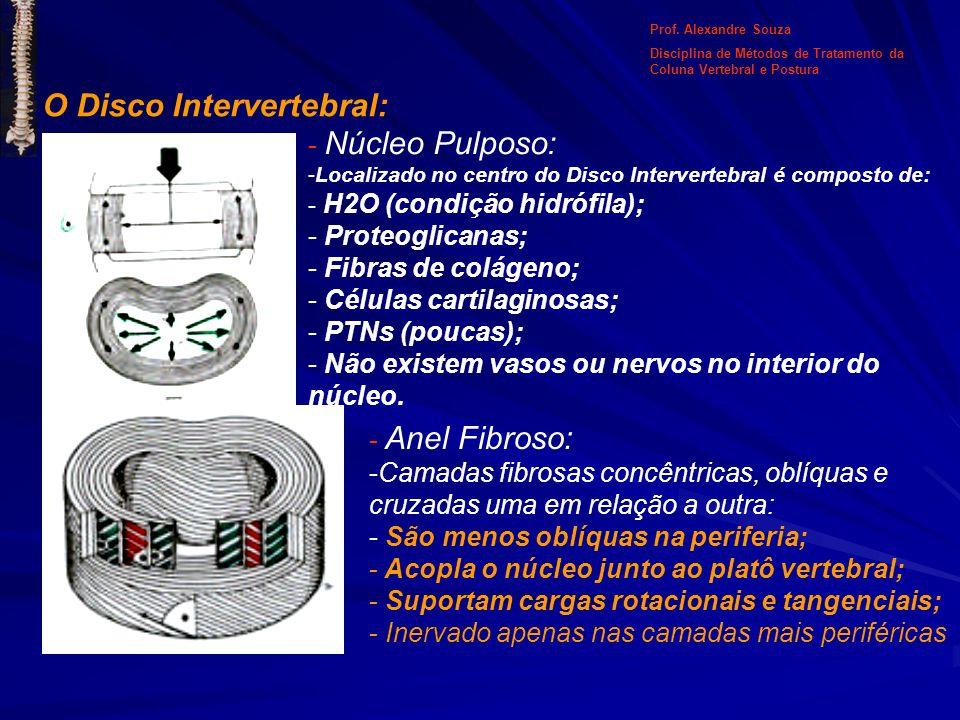 O Disco Intervertebral: - Núcleo Pulposo: -Localizado no centro do Disco Intervertebral é composto de: - H2O (condição hidrófila); - Proteoglicanas; -