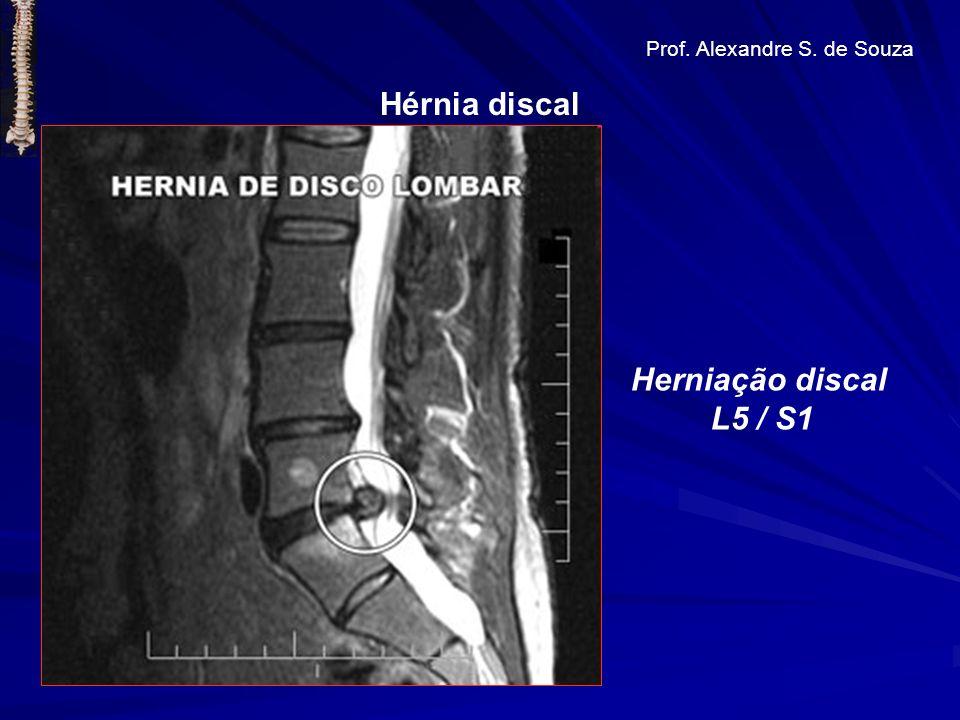 Hérnia discal Prof. Alexandre S. de Souza Herniação discal L5 / S1
