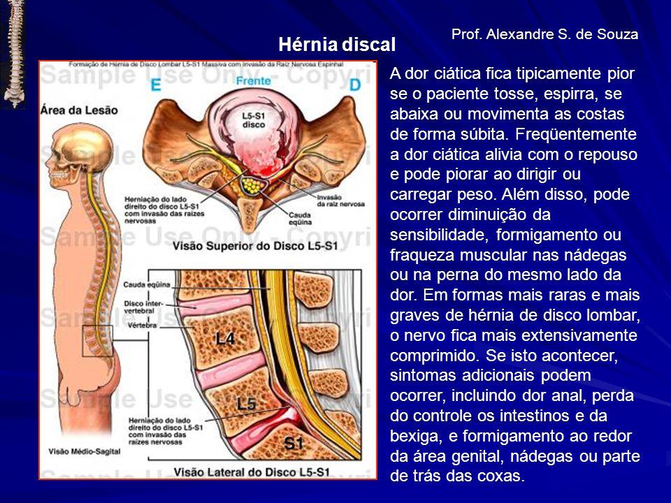 Hérnia discal Prof. Alexandre S. de Souza A dor ciática fica tipicamente pior se o paciente tosse, espirra, se abaixa ou movimenta as costas de forma
