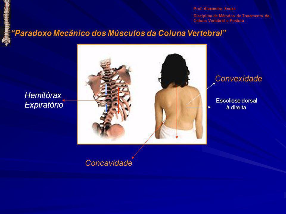 Escoliose dorsal à direita Concavidade Convexidade Hemitórax Expiratório Prof. Alexandre Souza Disciplina de Métodos de Tratamento da Coluna Vertebral