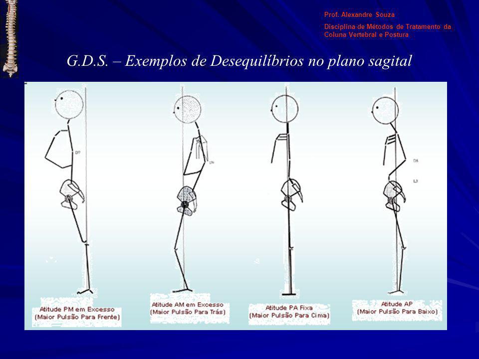G.D.S. – Exemplos de Desequilíbrios no plano sagital Prof. Alexandre Souza Disciplina de Métodos de Tratamento da Coluna Vertebral e Postura
