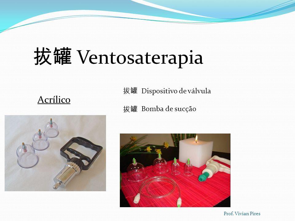 Ventosaterapia Benefícios da terapia Purificação do sangue Dinamiza as trocas gasosas Descongestiona Qi e sangue Prof.