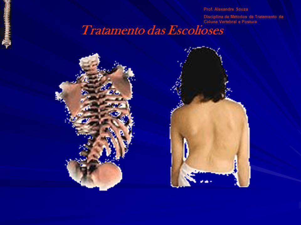 Tratamento das Escolioses Prof. Alexandre Souza Disciplina de Métodos de Tratamento da Coluna Vertebral e Postura