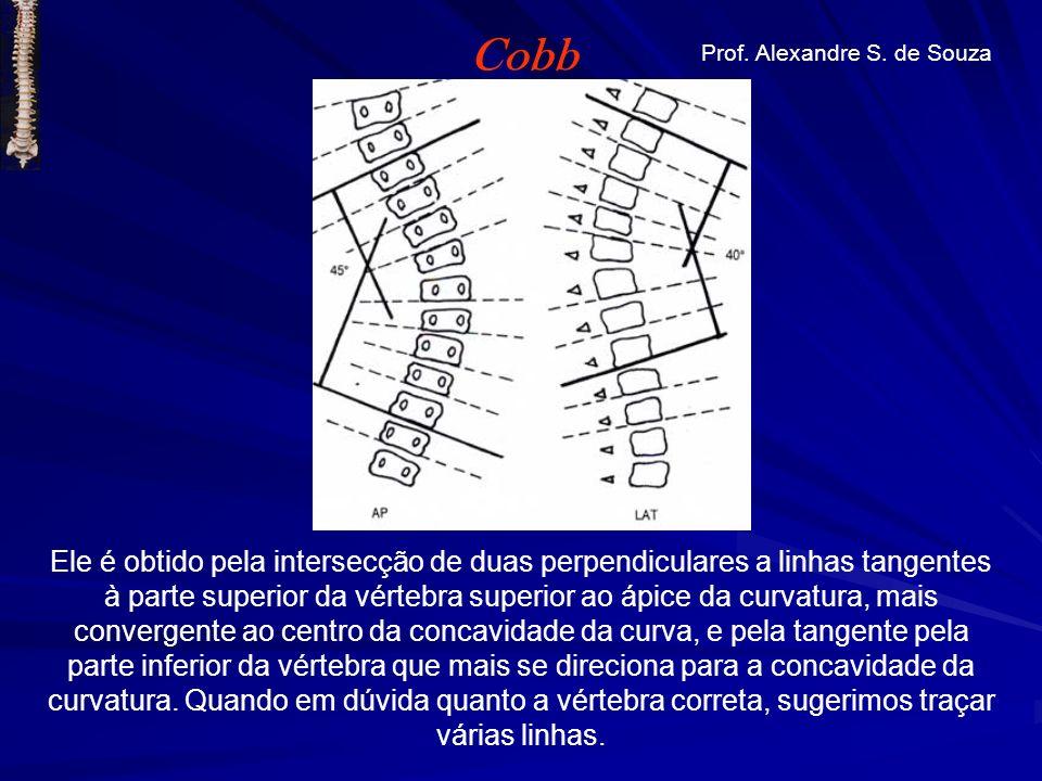 Ele é obtido pela intersecção de duas perpendiculares a linhas tangentes à parte superior da vértebra superior ao ápice da curvatura, mais convergente