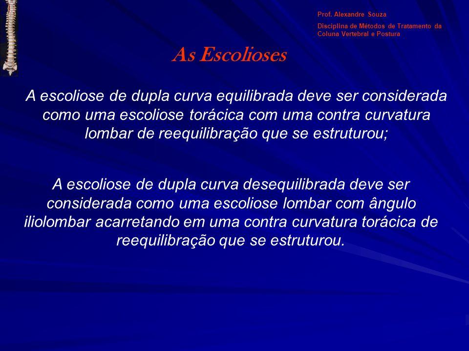 As Escolioses A escoliose de dupla curva equilibrada deve ser considerada como uma escoliose torácica com uma contra curvatura lombar de reequilibraçã
