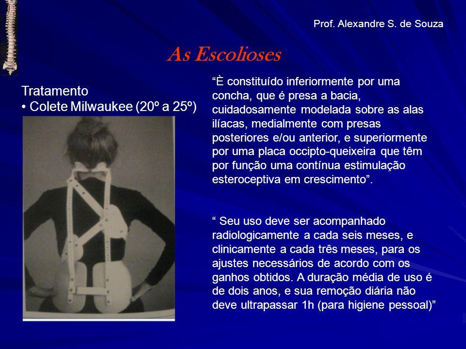 Tratamento Colete Milwaukee (20º a 25º) As Escolioses Prof. Alexandre S. de Souza È constituído inferiormente por uma concha, que é presa a bacia, cui
