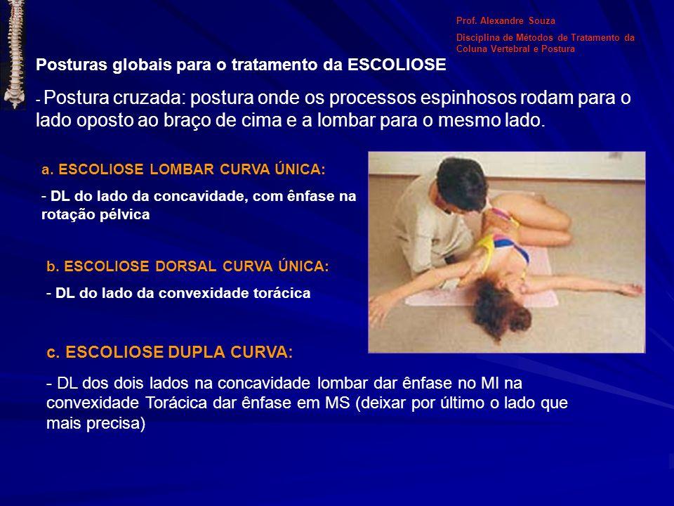 Posturas globais para o tratamento da ESCOLIOSE - Postura cruzada: postura onde os processos espinhosos rodam para o lado oposto ao braço de cima e a