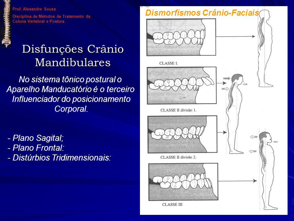 Disfunções Crânio Mandibulares No sistema tônico postural o Aparelho Manducatório é o terceiro Influenciador do posicionamento Corporal. Dismorfismos