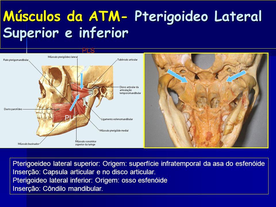 Músculos da ATM - Pterigoideo medial Pterigoideo medial: Origem : fossa pterígoidea. Inserção: superfície interna do ângulo da mandíbula