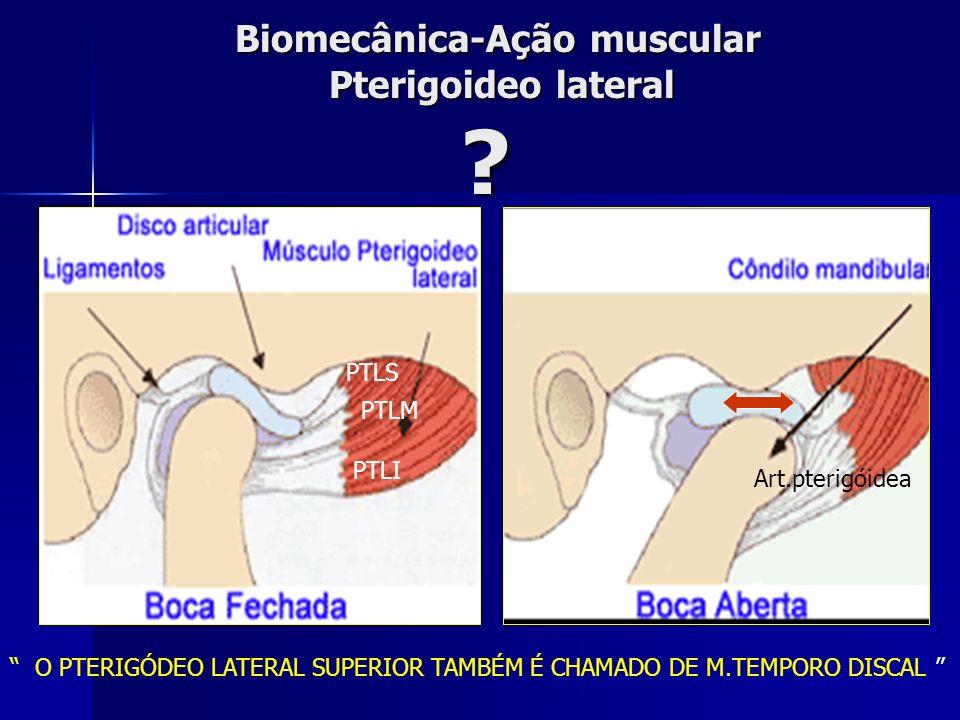 Músculos da ATM- Pterigoideo Lateral Superior e inferior PLI PLS Pterigoeideo lateral superior: Origem: superfície infratemporal da asa do esfenóide I