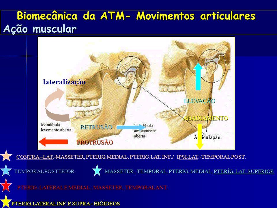 Biomecânica-Ação muscular Pterigoideo lateral ? Biomecânica-Ação muscular Pterigoideo lateral ? PTLS PTLM PTLI O PTERIGÓDEO LATERAL SUPERIOR TAMBÉM É