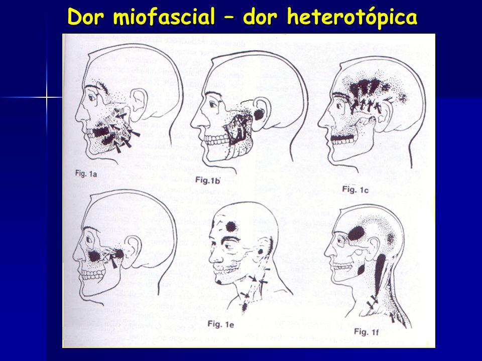 DTMs DE ORIGEM MUSCULAR Evolução das MIALGIAS Evolução das MIALGIAS - Contrações protetoras(Aguda) - Mioespasmos - Dor Miofascial (Trigger point) (Tri