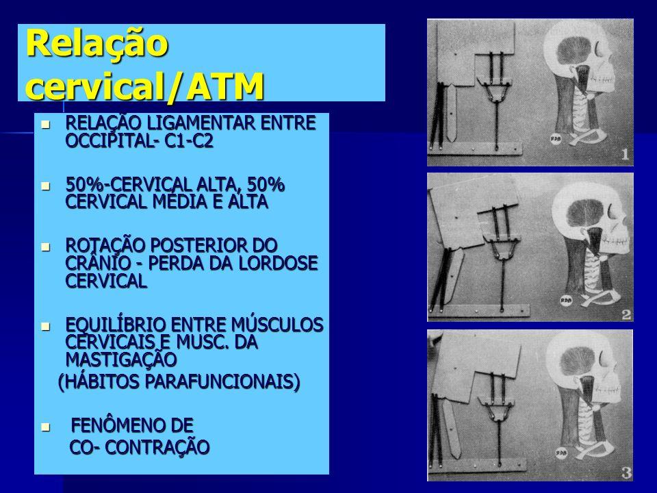 OUTRAS ALTERAÇÕES ARTICULARES Condições inflamatórias sistêmicas (artrite reumatóide) Condições inflamatórias sistêmicas (artrite reumatóide) Microtra