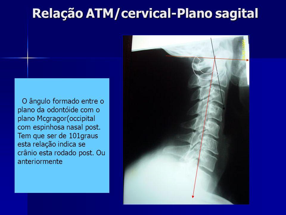 Relação ATM/CERVICAL – plano coronal Relação ATM/CERVICAL – plano coronal Proc.espinhoso de C2 Proc.transv.C1 Plano de oclusão Linha média esqueletal