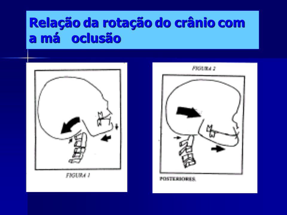Relação ATM/cervical-Plano sagital O ângulo formado entre o plano da odontóide com o plano Mcgragor(occipital com espinhosa nasal post. Tem que ser de