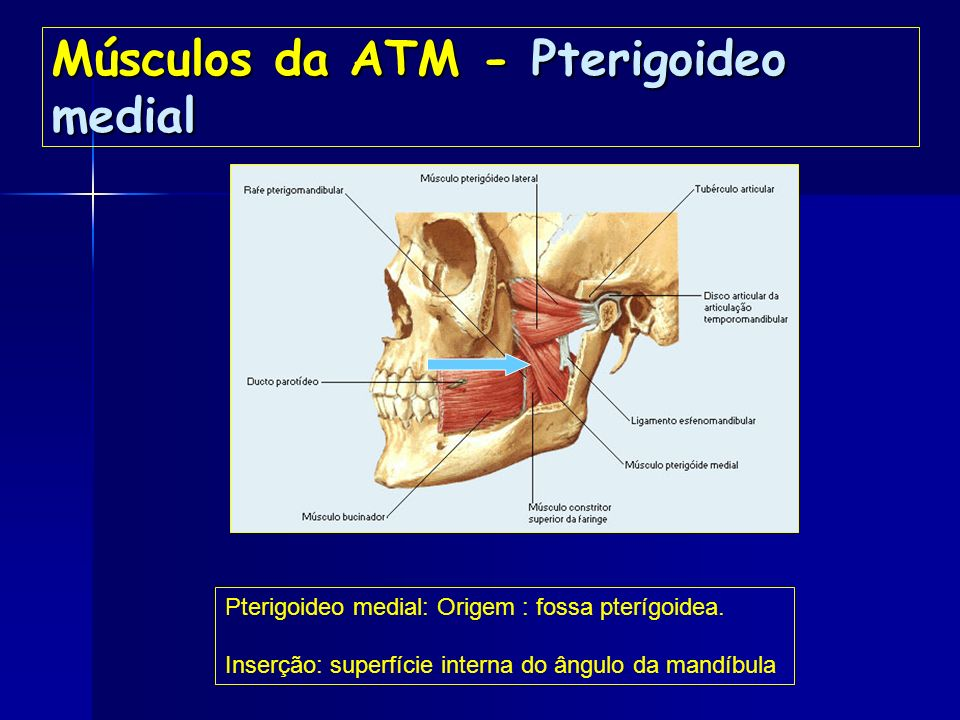 Músculos da ATM- Temporal Temporal : Origem:Fossa temporal e superfície lateral do crânio. Inserção: Processo coronóide (grande tendão). OBS: Apresent