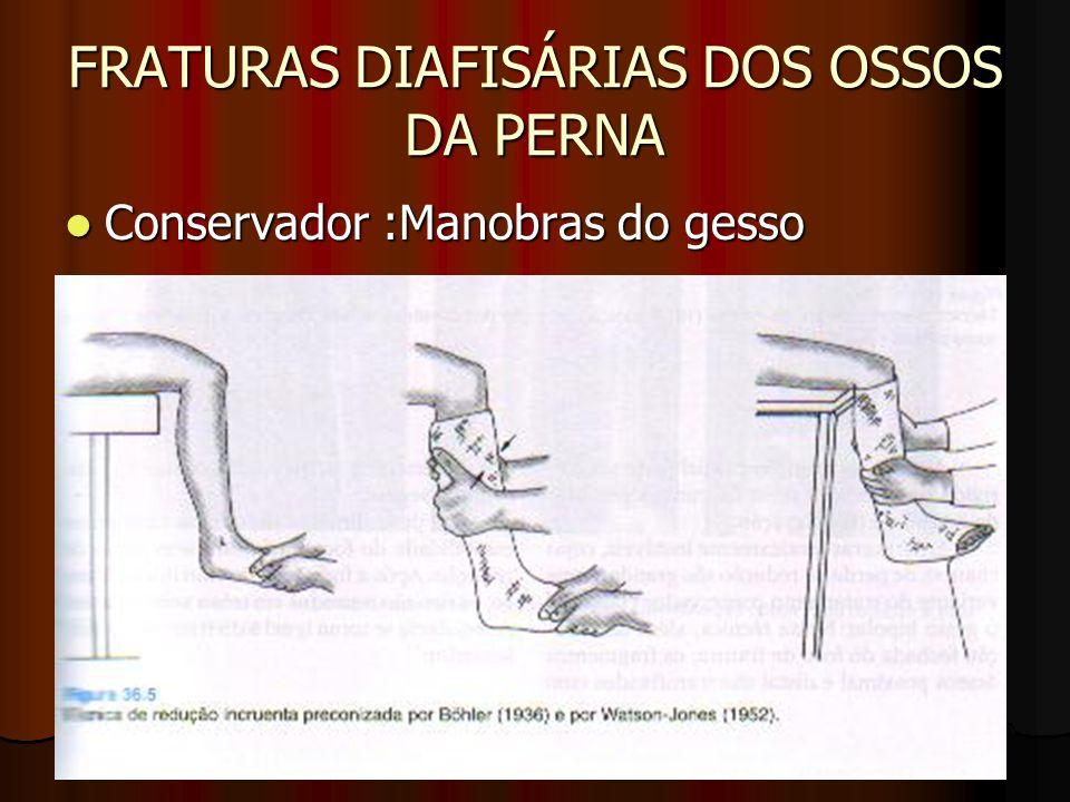 FRATURAS DIAFISÁRIAS DOS OSSOS DA PERNA Conservador :Manobras do gesso Conservador :Manobras do gesso